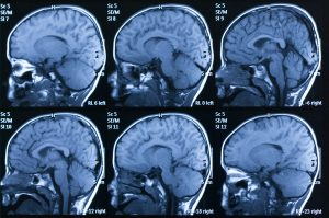 Washington DC Traumatic Brain Injury Attorney